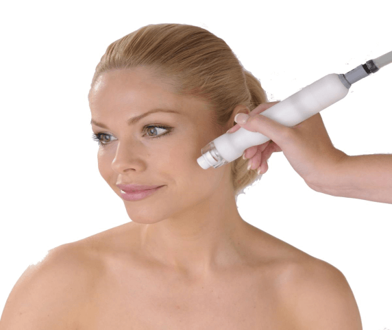 Photo of Microdermabrasion treatment